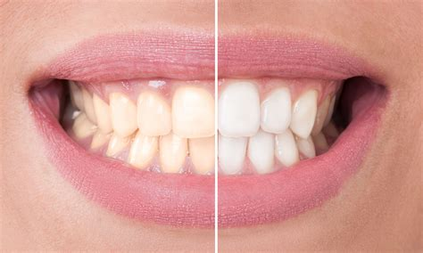 do teeth whitening kits you use at home really work