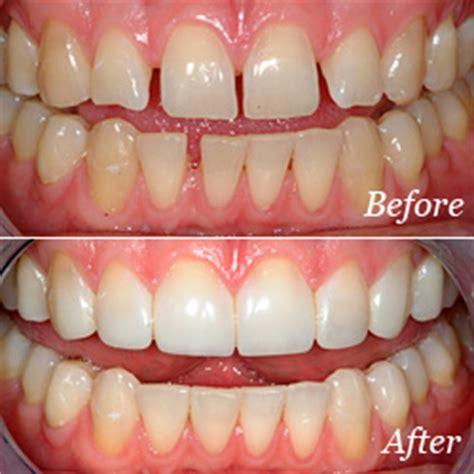 bonding 19th dental atlanta ga