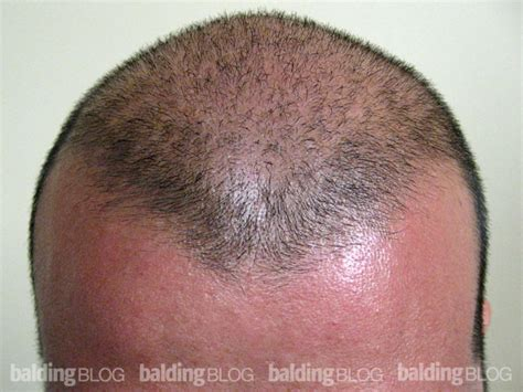 propecia or rogaine for frontal hair loss receding hairline propecia frontal baldness frontal balding propecia cheap