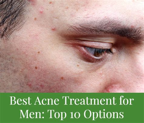 best acne treatment best acne treatment for top 10 options cushy spa
