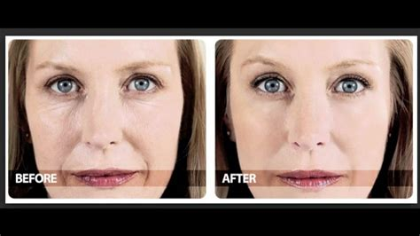 The Before - phytoceramides before and after