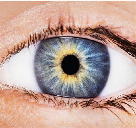 ojo de nube el 191 por qu 233 a veces aparecen manchas rojas en el ojo blog de cl 237 nica baviera