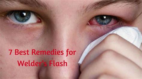 burning eyes light sensitivity 7 best remedies for welder s flash