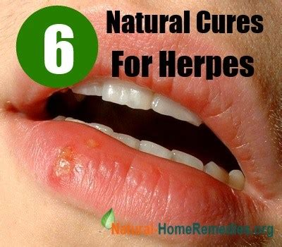6 effective cures for herpes home remedies