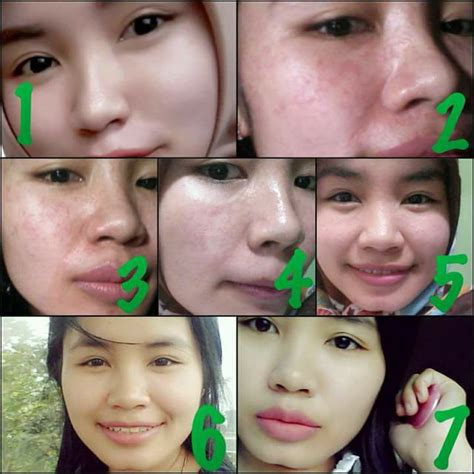 Sabun Amoorea Plus Bar detox nu amoorea plus bar berapa lama nu amoorea stem cell