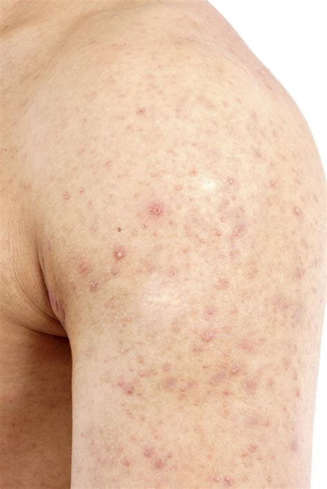 Why Does Skin Itch After Showering by What Are The Bumps On Arms Onehowto