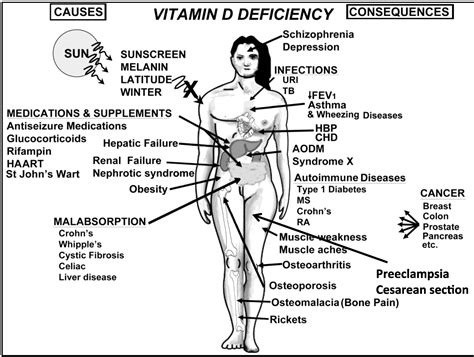 vitamin d deficiency free 1 hour vitamin d lecture nutrients free full text vitamin d effects on