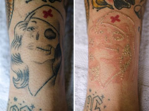 black ink tattoo removal before and after think before you ink shout geelong