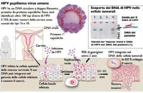 condilomi anali interni infezione da papilloma virus umano