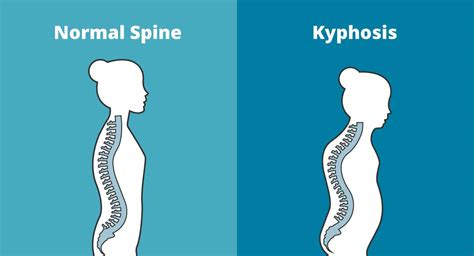 how to create rounded look to back of bob hair cut kyphosis exercises treat a rounded upper back