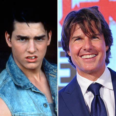 make celeb fakes real stars fake teeth 20 celebrities who have had