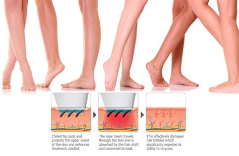 Laser Hair Removal Different Types by 5 Reasons To Consider Laser Hair Removal Which Will Assure