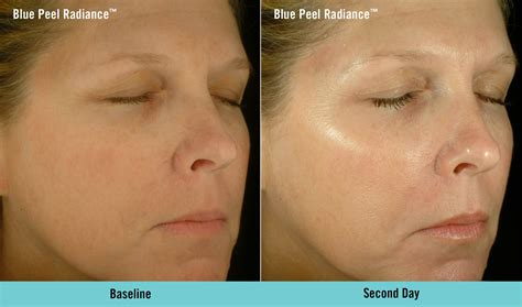 light chemical peel before and after advanced skin peels light touch clinic