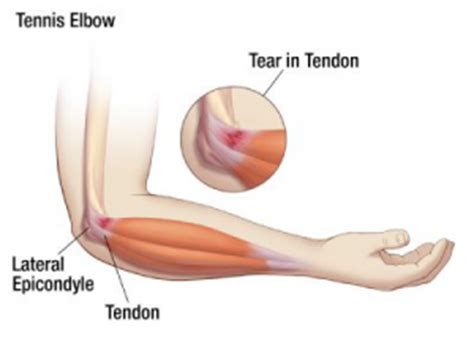 elbow pain when benching fighting elbow pain with metabolic finishers