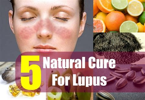 5 cure for lupus how to treat lupus naturally