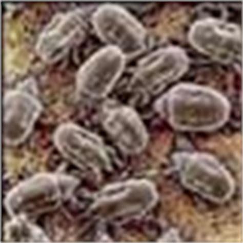 matratze milben chemiefreie reinigung der matratze hygienische