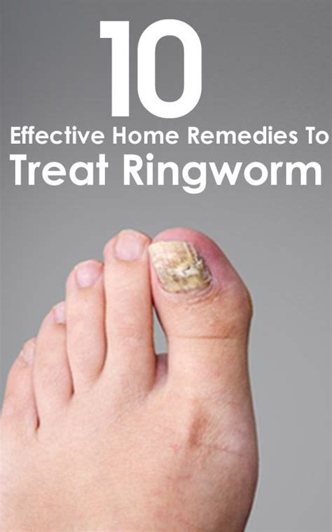 Ringworm Home Remedy by How To Get Rid Of Ringworms Top 15 Powerful Home Remedies Home Home Remedies And Remedies