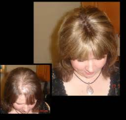 20 month hair thinning on top clip in extensions for thin hair on top triple weft hair extensions