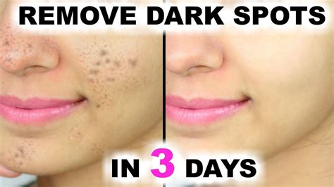 how to remove or prevent black dots ingrown hairs dark patches on face due to sunburn relief