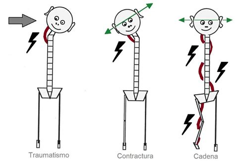 cadenas musculares anteriores creaci 243 n de cadenas musculares de compensaci 243 n fisiomarc