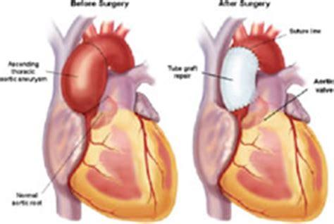 Plastik Wrap Di Lung aortic aneurysms dr krasopoulos
