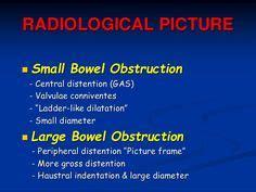 intestinal blockage timeline douglas pouch ile ilgili g 246 rsel sonucu flashh