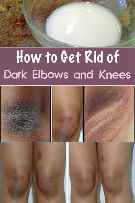 17 best ideas about elbows on skin