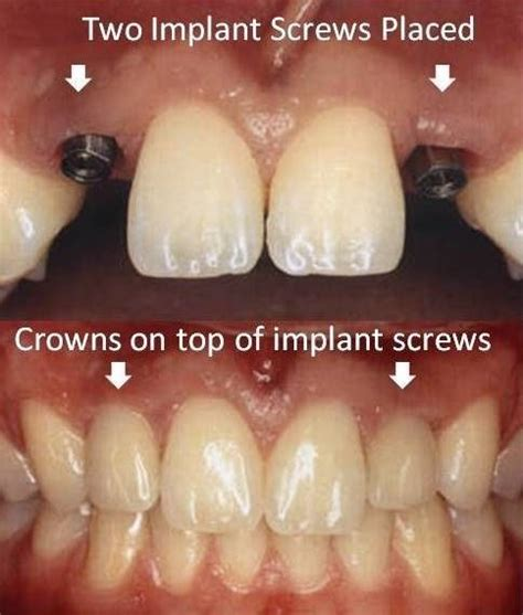 Mba Implant Cpt by 1000 Ideas About Dental Implants On Dental