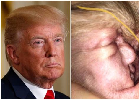 trump s face found in a dog s ear cnn video can you find resemblance in this dog s ear and us