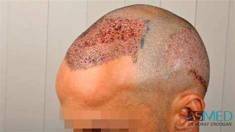 fixing hair graft scar asmed hair transplant results gallery norwood 5 dr