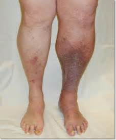 vein thrombosis homeopathic treatment