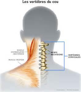 douleur cervicale la douleur chronique au cou