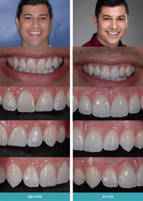 smile makeovers cosmetic dentistry comstock park teeth