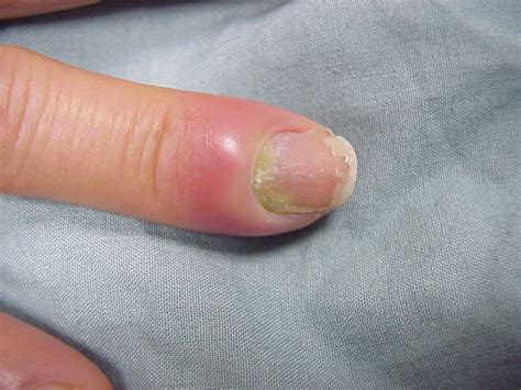 infected nail bed nail fold infection
