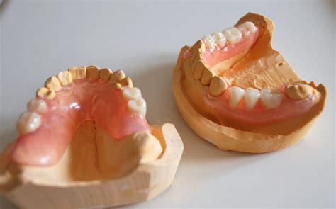 protesi dentarie mobili costi protesi mobili flessibili in andrea costantini