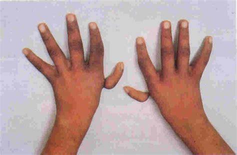black fan anemia anaemia hypoplastic anaemia