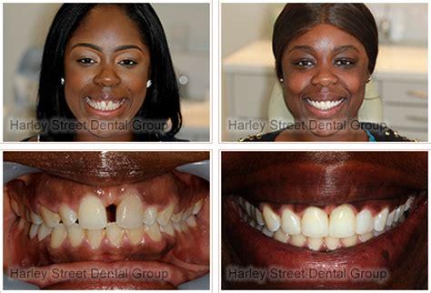 restore  smile  invisalign whitening bonding