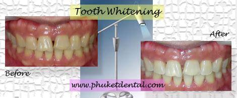 city park dental clinicin office tooth whitening phuket
