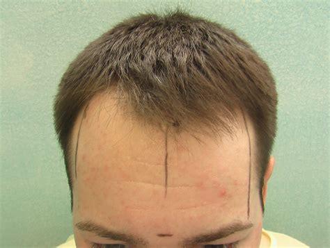 new technology in hair restoration 2014 hair transplant surgery newhairstylesformen2014 com