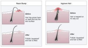 hair bumps on private area ingrown hair bumps on private area pic search results