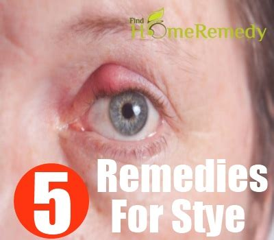 5 amazing home remedies for stye treatments