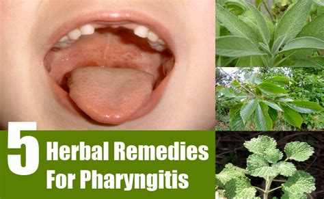 pharyngitis herbal remedies treatment and cures