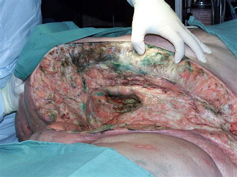 c section cellulitis sepsis causes symptoms treatment sepsis