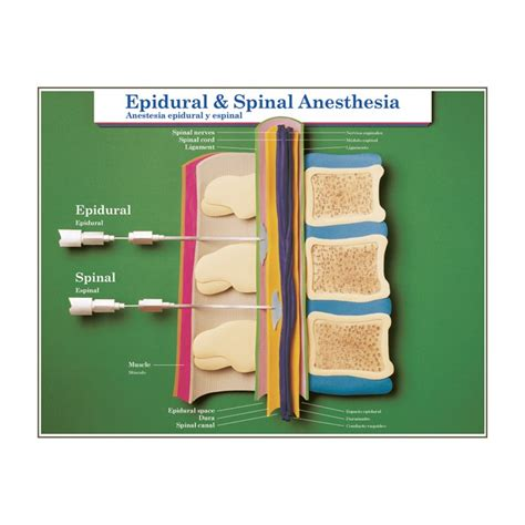 spinal versus epidural anaesthesia for caesarean section spinal and epidural anesthesia causes symptoms