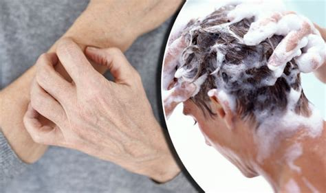 Why Does Skin Itch After Showering by Eczema Warning Washing Your With Shoo Can Trigger Itchy Symptoms Health