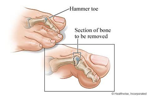 image gallery hammer toe surgery