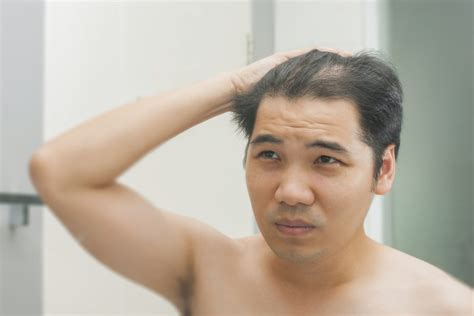 male pattern hair loss symptoms effects of hair loss in men and women hair loss treatment