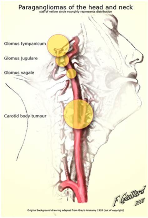 tumore orecchio interno sintomi tumori glomici o paraganglioma timpanogiuguiare o