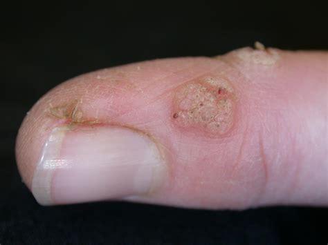 Warts Toenails Images