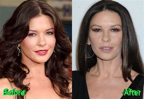 catherine zeta jones surgery catherine zeta jones plastic surgery new look for the